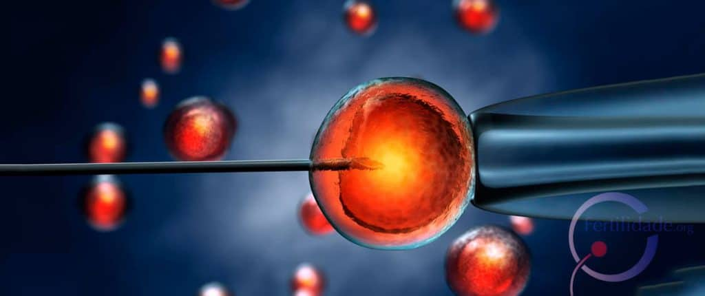 na Fertilização in vitro (FIV)